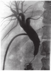 Fig. 3: X-ray image of stenosed duct obtained using ERCP.