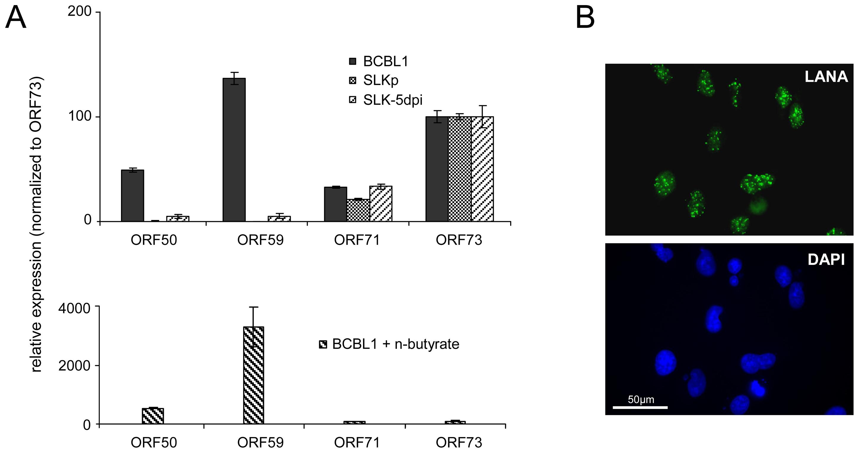 Latent KSHV expression patterns of SLK<i><sub>P</sub></i> and <i>de novo</i> infected SLK cells.
