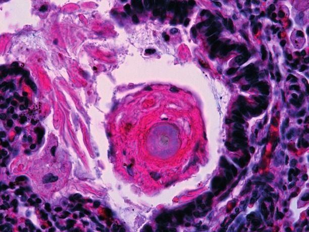 """Pľúcne """"hassalloidné"""" teliesko s epitelovou folikulárnou štruktúrou kože zachytenou v bronchu (HE, 240x)."""
