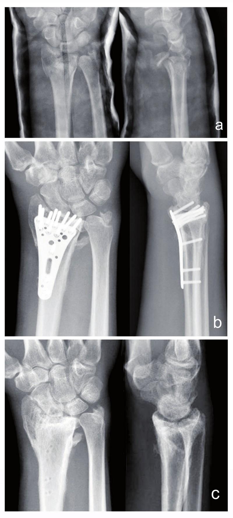 Sekundární dislokace kostních fragmentů značně tříštivé nitrokloubní zlomeniny distálního radia v průběhu hojení: a) zlomenina typu C3 v sádrové fi xaci b) zlomenina stabilizovaná úhlově volitelnou zamykatelnou dlahou s uspokojivým pooperačním postavením kostních fragmentů dle kritérií Jupitera c) stav po extrakci osteosyntetického materiálu s depresí kloubní polchy a artrotickými změnami radiokarpálního kloubu