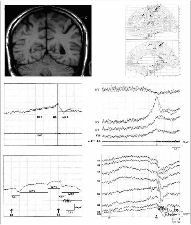 Contingent Negative Variation (CNV) a Bereitschaftspotential (BP) Horní část: Ukázka uložení intracerebrální elektrody S´ v levém primárním somatosenzorickém kortexu (vlevo superpozice elektrody na MR, vpravo schematické uložení intracerebrální elektrody – označeno šipkami). Střední část: Ukázka BP, skalpová registrace z vertexové elektrody (vlevo), zvrat fáze BP snímaného z intracerebrální elektrody S´ (vpravo), čísla označují jednotlivé kontakty na intracerebrální elektrodě (S´2, S´8–10). Dolní část: Ukázka CNV, skalpová registrace z vertexové elektrody (vlevo), zvrat fáze CNV snímané z intracerebrální elektrody S´ (vpravo), čísla označují jednotlivé kontakty intracerebrální elektrody (S´1,3–10). BP1: první část BP; NS: druhá část BP (negative shift); MAP: potenciál doprovázející pohyb (Movement Accompanying Potential); EMG: elektromyografická aktivita svalu předloktí motorickým; S1: varovný, warning, podnět; S2: vykonávající, imperativní podnět; KEP: komplex evokovaného potenciálu po varovném podnětu; KEP: komplex evokovaného potenciálu po imperativním podnětu; iCNV: časná část CNV (initial CNV); tCNV: pozdní část CNV (terminal CNV); FCU: musculus flexor carpi ulnaris. Upraveno dle [3,4,48,49].