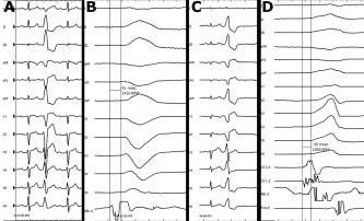 Endokardiální a epikardiální mapování KES.