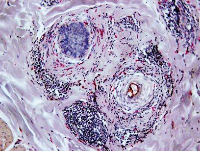 Zvýšený počet mastocytov periadnexálne v derme. CHAE, 100x.
