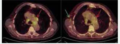 Obr. 1 a 2. PET/CT studie z června roku 2013 a listopadu roku 2013