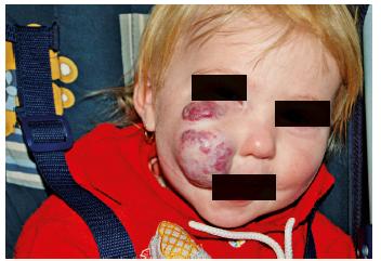 Reziduum neléčeného hemangiomu u 2letého dítěte. Fig. 7. Residue of untreated hemangioma in two years old child.