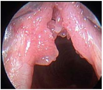 Papilomatóza hrtanu. Fig. 5. Laryngeal papillomatosis.