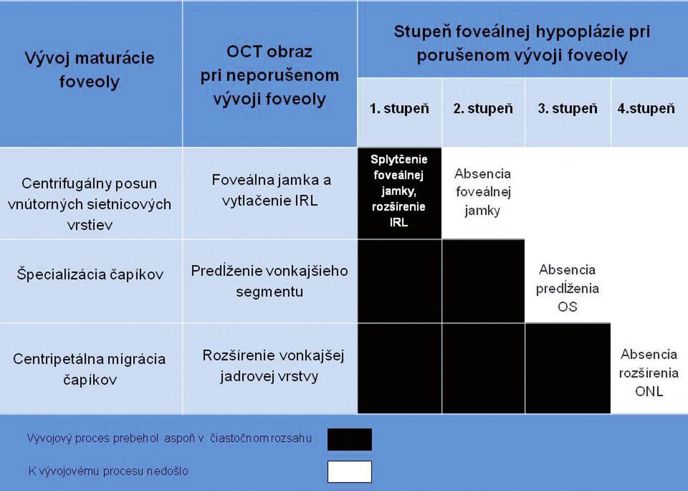 Stupne FH podľa poruchy vývoja maturácie foveoly a korelácia OCT obrazu.