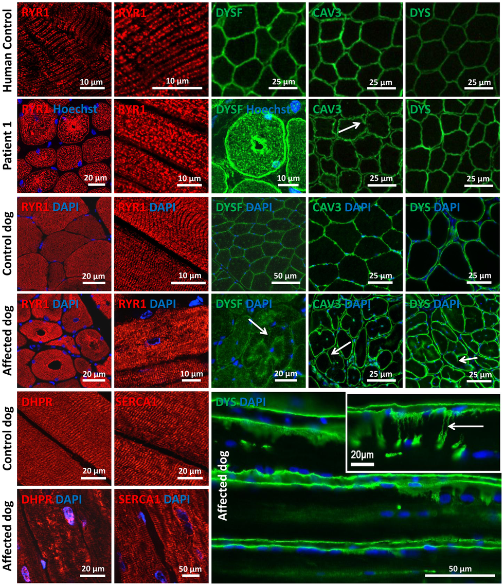Alteration of triad components and proteins regulating membrane trafficking.