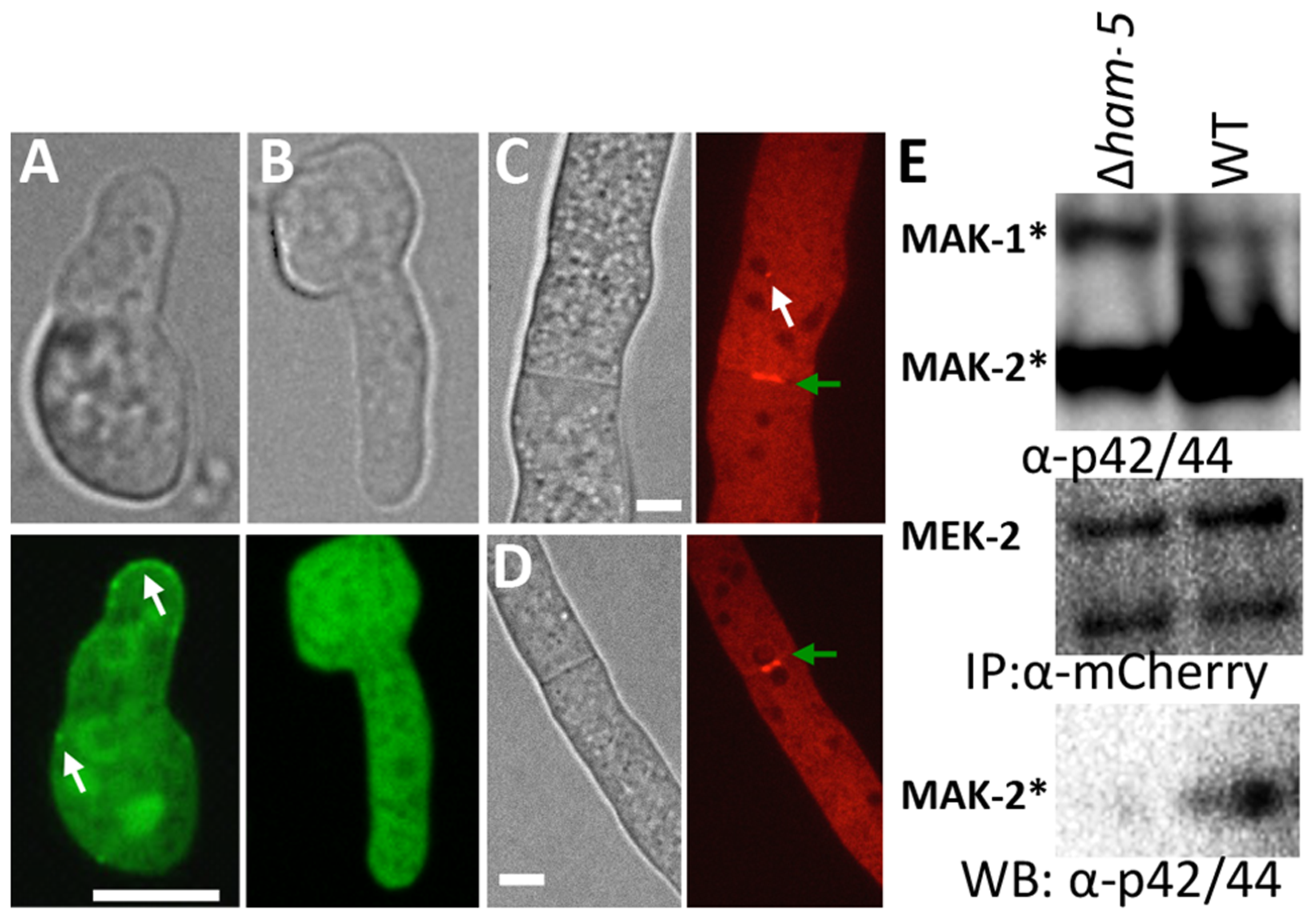 HAM-5 is required to localize MAK-2 and MEK-2 to puncta.