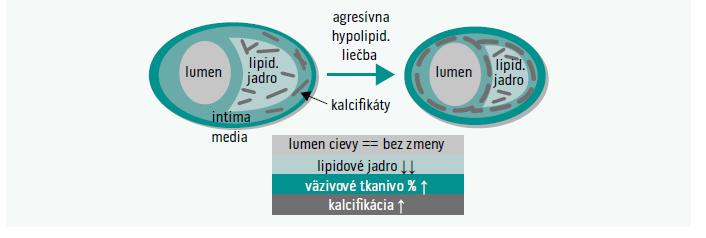 Schéma. Účinky intenzívnej hypolipidemickej liečby na aterosklerotickú léziu.