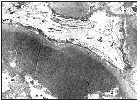 Pri elektrónovej mikroskopii boli v 3. glomerule veľké depozity homogénneho materiálu (hyalín).