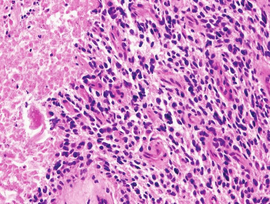 Na histologickém preparátu je patrná zřetelná polymorfie nádorových buněk, zvýšená vaskularizace tumoru a ložisko nekrózy na jejím okraji s naznačeným palisádovým uspořádáním nádorových buněk multiformního glioblastomu. (barvení HE, zvětšení 200×).