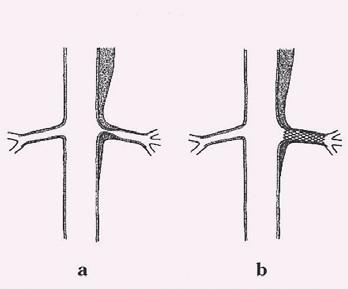 Obraz statické obstrukce řešený implantací stentu.