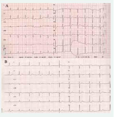 EKG u pacientky s feochromocytomem před operací (A) ukazující na difuzní změny ST úseku a 5. pooperační den (B), kde tyto změny již nejsou patrné