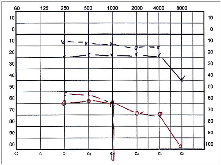 Tónový prahový audiogram 4 mesiace po operácii, ktorý je stabilný 2 roky.
