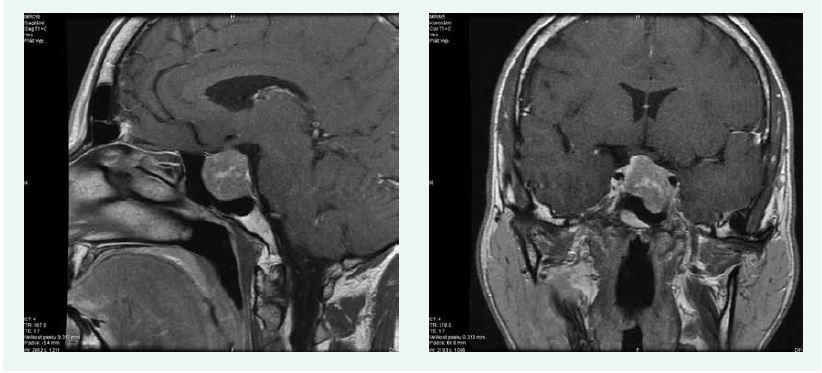 Kazuistika 3 – makroadenom hypofýzy (MRI) (snímky v plném rozlišení naleznete v on-line verzi článku)