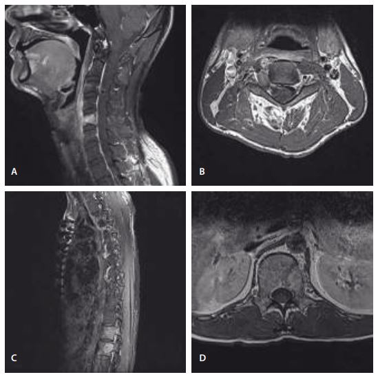 Preoperative MRI. T1-weighted images with contrast showing a homogenous enhancing mass lesion in the C5 vertebral body (A), and a dumbbell-shaped mass lesion in the right foramen at the C3–C4 level (B). It also showed a homogeneous enhancing mass lesion in the T12 vertebral body invading the epidural space (C) and the L1 vertebral body and left pedicle (D).