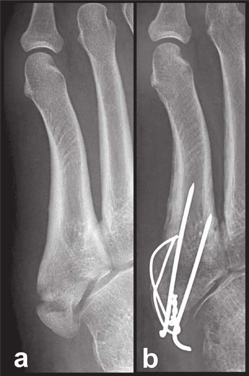 Osteosyntéza tahovou cerkláží Fig. 6: Internal fixation by tension band wiring