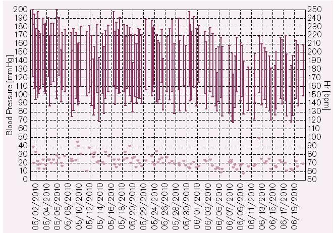 Grafické zobrazení naměřených hodnot TK a pulzu u pacienta s rezistentní hypertenzí a jejich postupný pokles v období necelých dvou měsíců mezi klinickými kontrolami, kdy byly úpravy léčby dělány na základě telemonitoringu a sdělovány pacientovi telefonicky.