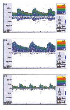 Ultrasonografické průtokové křivky v a. cerebri media a/ v klidu, b/ při zadržení dechu (BH) na 30 sek a c/ při hyperventilaci po dobu 2 minut.