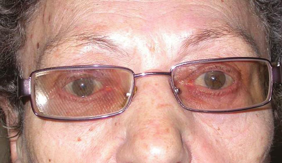 Fresnelova prizmatická fólie nalepená na brýlová skla s mírným stupněm zabarvení s dobrým kosmetickým i funkčním efektem