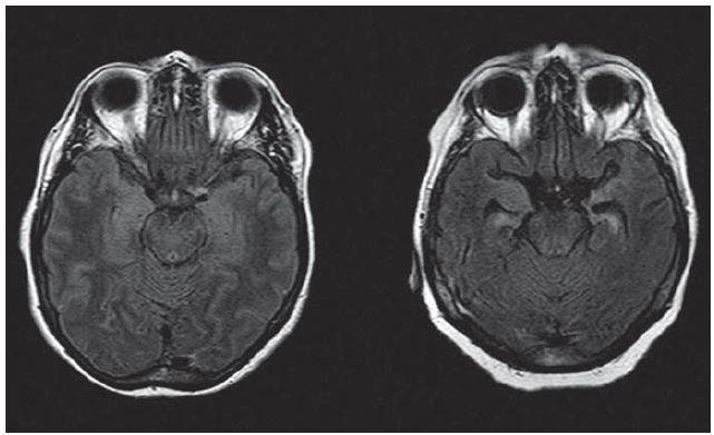 Různá intenzita změn meziotemporálně na MR mozku (axiální FLAIR) u pacientek s pozitivitou anti-LGI1 a klinickými projevy limbické encefalitidy – vlevo S. M., vpravo M. A.