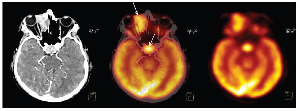 <sup>18</sup>F-FDG PET/CT v období stanovení diagnózy prokazuje hyperakumulaci <sup>18</sup>F-FDG v tkáni difuzního B-velkobuněčného lymfomu v pravé orbitě i v adenomu hypofýzy. Tomografické řezy proložené rovinou procházející pravou orbitou i adenomem hypofýzy. Zleva CT, fúze PET/CT, PET. Šipky ukazují hyperakumulaci <sup>18</sup>F-FDG v obou nádorech.