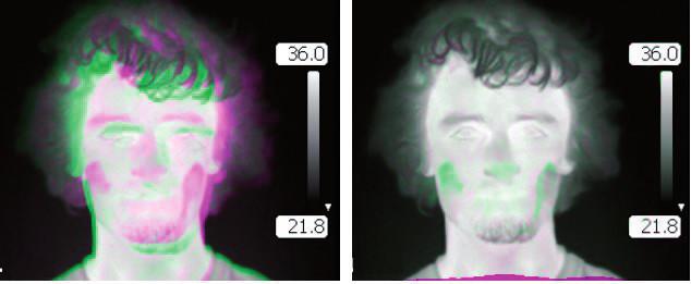 Fig. 1: The result of registration: a) Overlaps of the original images. b) Overlap of the images after registration.