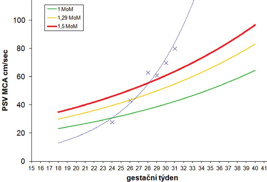 Graf 1 a 2 Série dopplerometrických měření MCA PSV u případu spontánního TAPS (případ A)