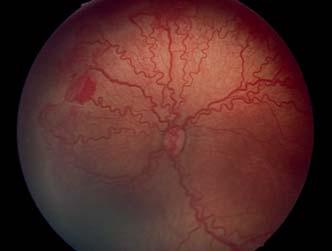 ROP – posteriórna forma AP- ROP, výrazné plus štádium, neovaskularizácie, hemoragie.