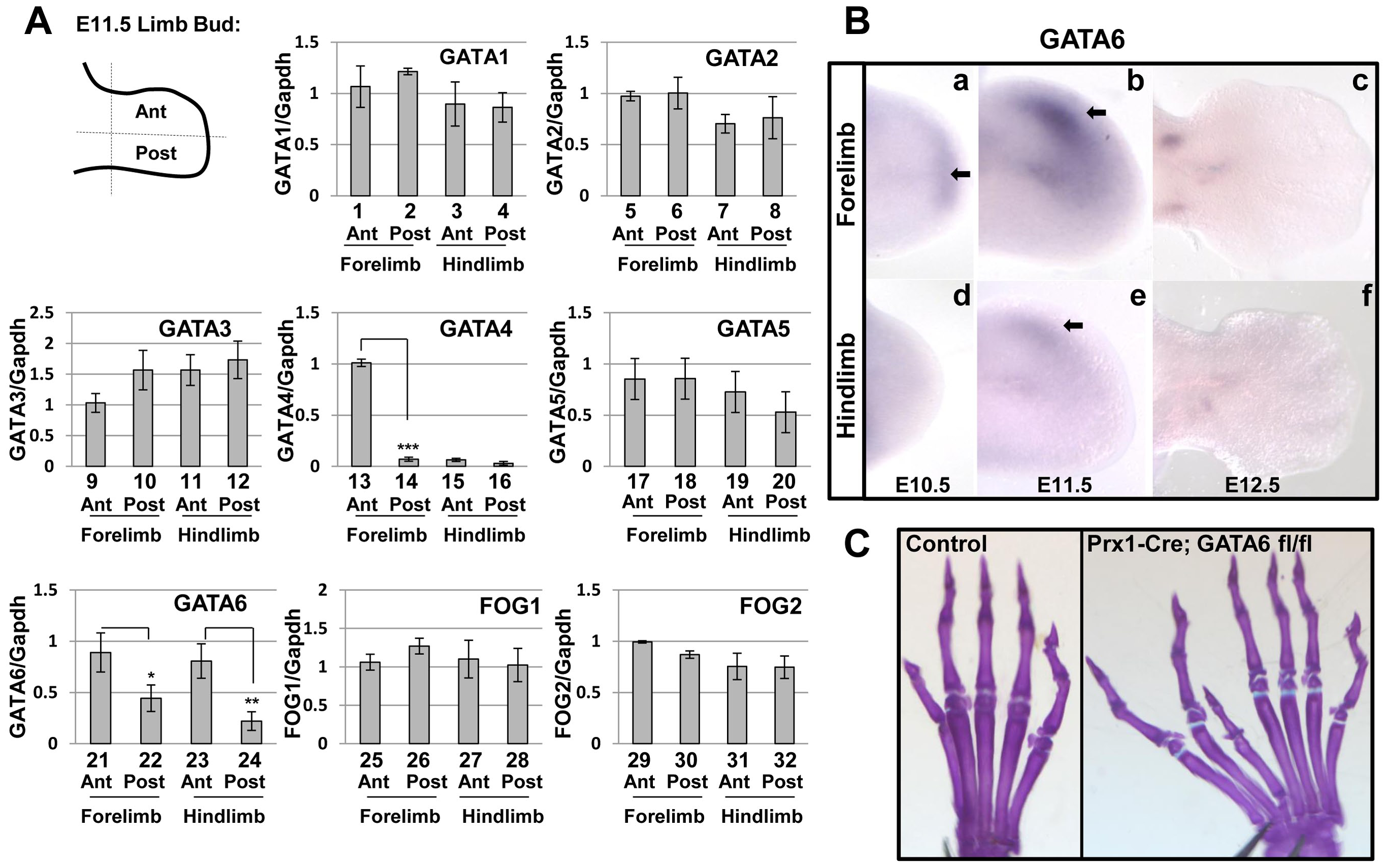 GATA and FOG factors are expressed in the limb bud mesenchyme, loss of GATA6 from limb bud mesenchyme results in hindlimb preaxial polydactyly.