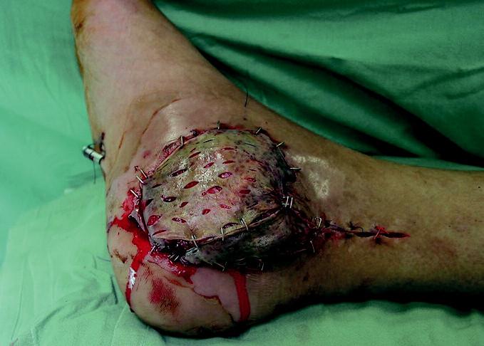 Tentýž pacient po zakrytí defektu svalovým lalokem a dermoepidermálním štěpem.