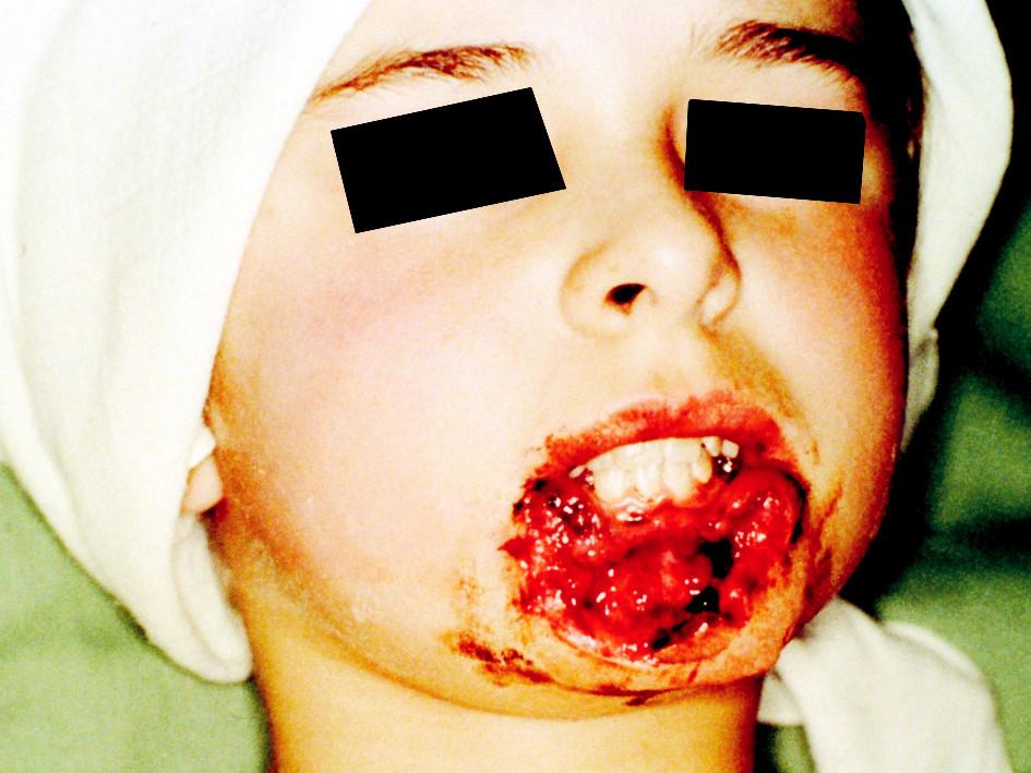 Ztrátové poranění dolního rtu (90 %) s odloženou rekonstrukcí Pic. 1. A defect injury of the lower lip (90%) with delayed reconstruction