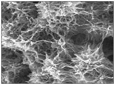 Povrch implantátu Impladent – STI-Bio-C (Lasak, Česká republika) – SEM, zvětšení 10000x, převzato z [42].