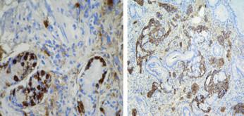 Histologické vyšetření lézí v těle a fundu žaludku.