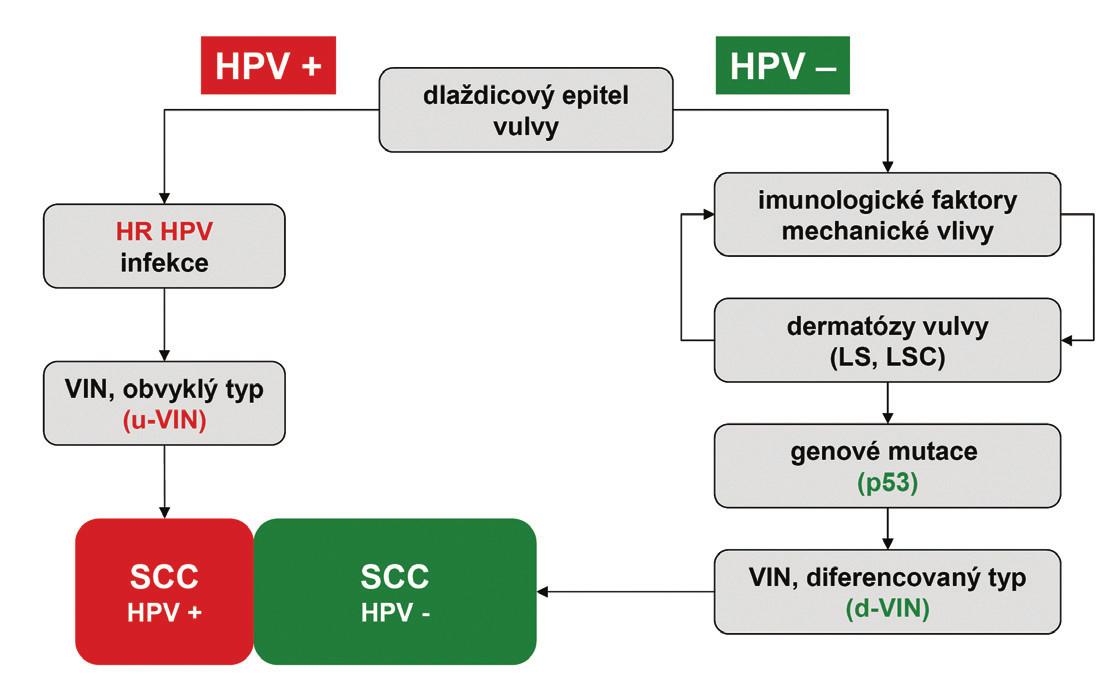 Grafické znázornění dvou hlavních cest etiopatogeneze SCC vulvy. u-VIN – vulvární intraepiteliální neoplázie obvykleho typu; d-VIN – vulvární intraepiteliální neoplázie diferencovaného typu; LS – lichen sclerosus; LSC – lichen simplex chronicus; SCC – dlaždicobuněčný karcinom; HPV – lidský papillomavirus; HR HPV – vysoce rizikové typy lidského papilomaviru