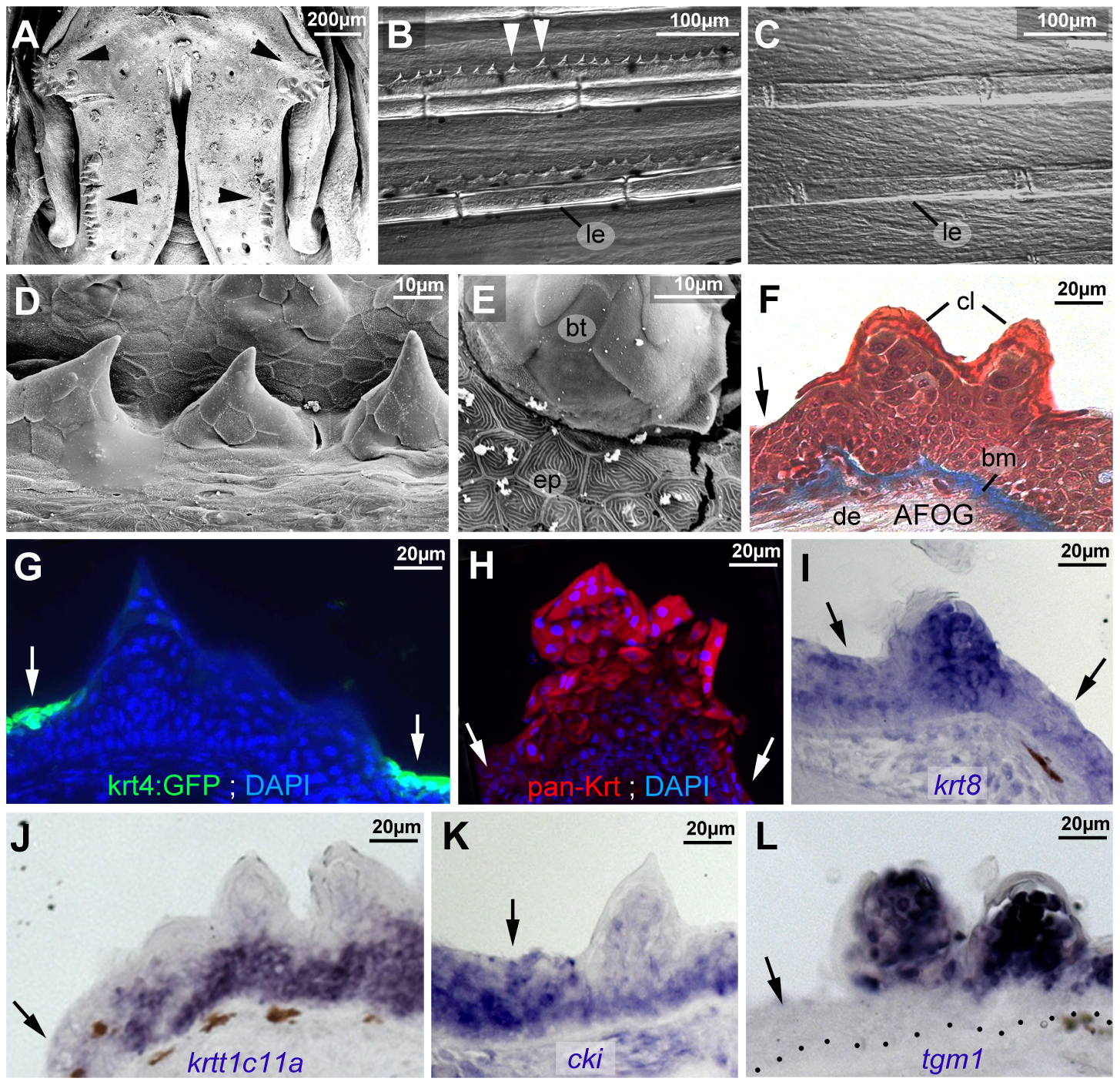 Breeding tubercle keratinocytes undergo more advanced keratinization.