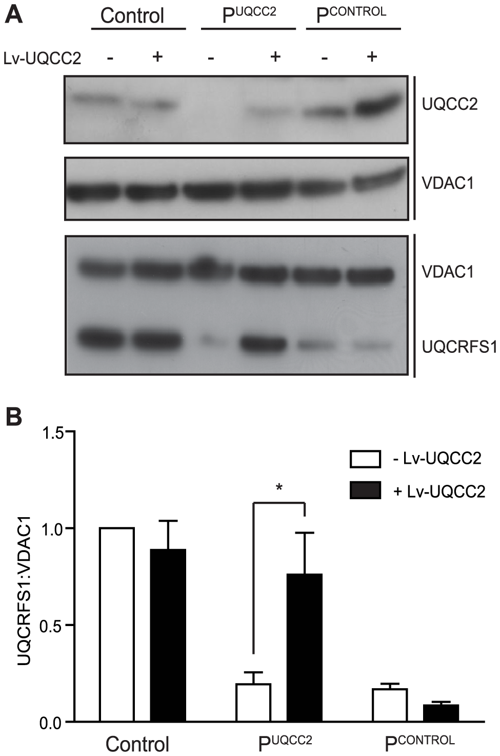 <i>UQCC2</i> mutations are responsible for the complex III defect in P<sup>UQCC2</sup>.