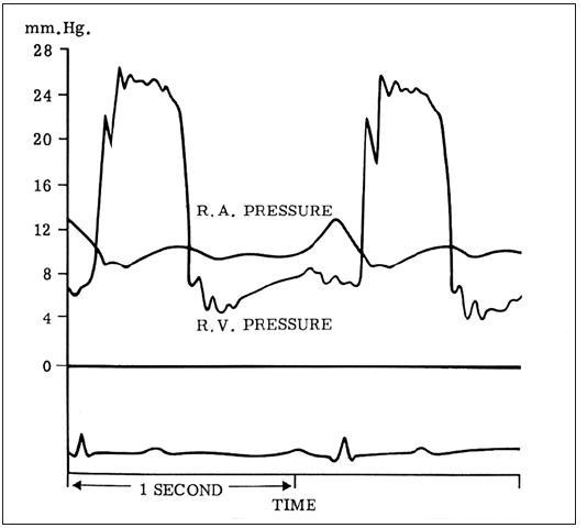 Tlakové záznamy u pacienta s trikuspidální stenózou ukazují diastolický gradient mezi pravou síní a pravou komorou.