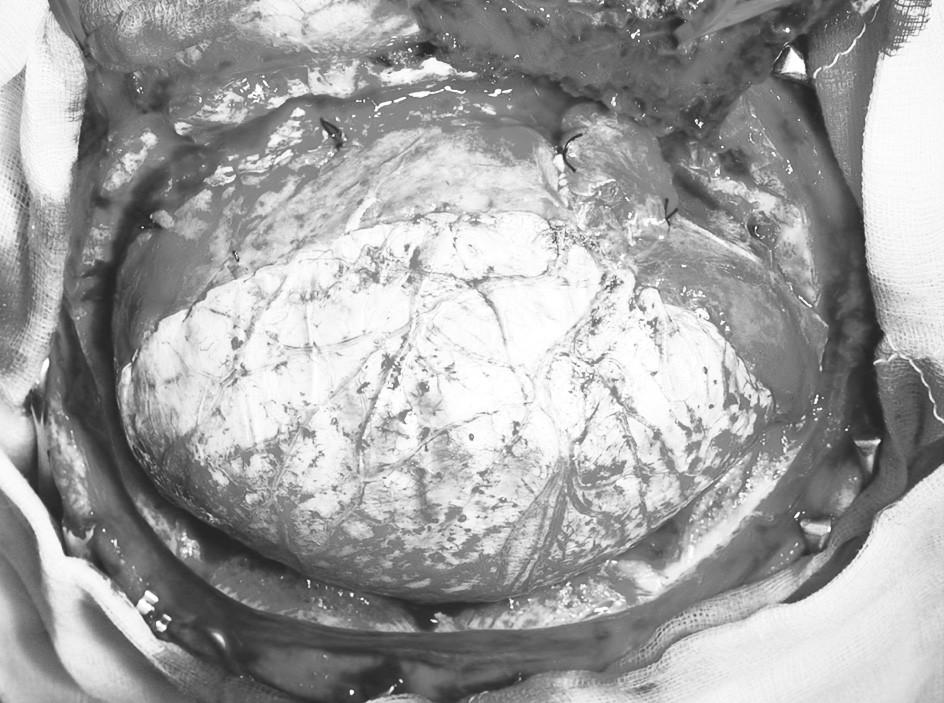 Plastika defektu tvrdé pleny štěpem periostu Pic. 8. Reconstruction of the dural defect using a periosteal Grapht