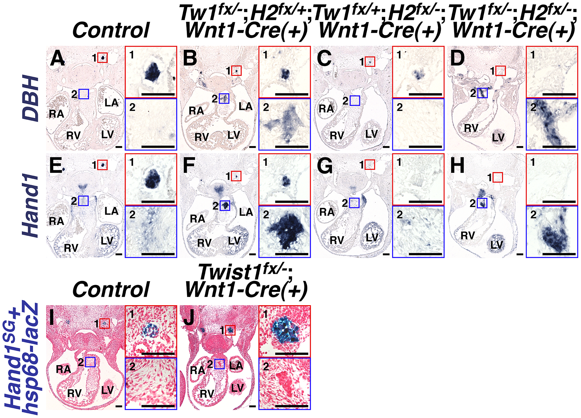 Ectopic sympathetic-like neurons in <i>Twist1</i>;<i>Wnt1-Cre</i> CKO APCs are not <i>bona fide</i> sympathetic neurons.
