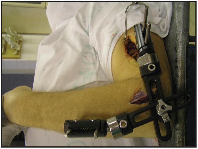 Zevní fixace loketního kloubu (kadaver)
