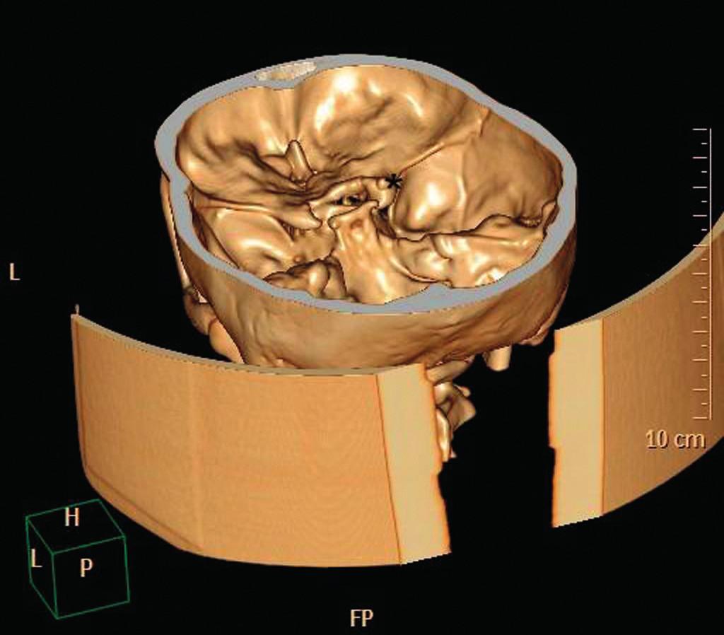 Obr. 1 a 2 Kontrolní MR vyšetření optického nervu.