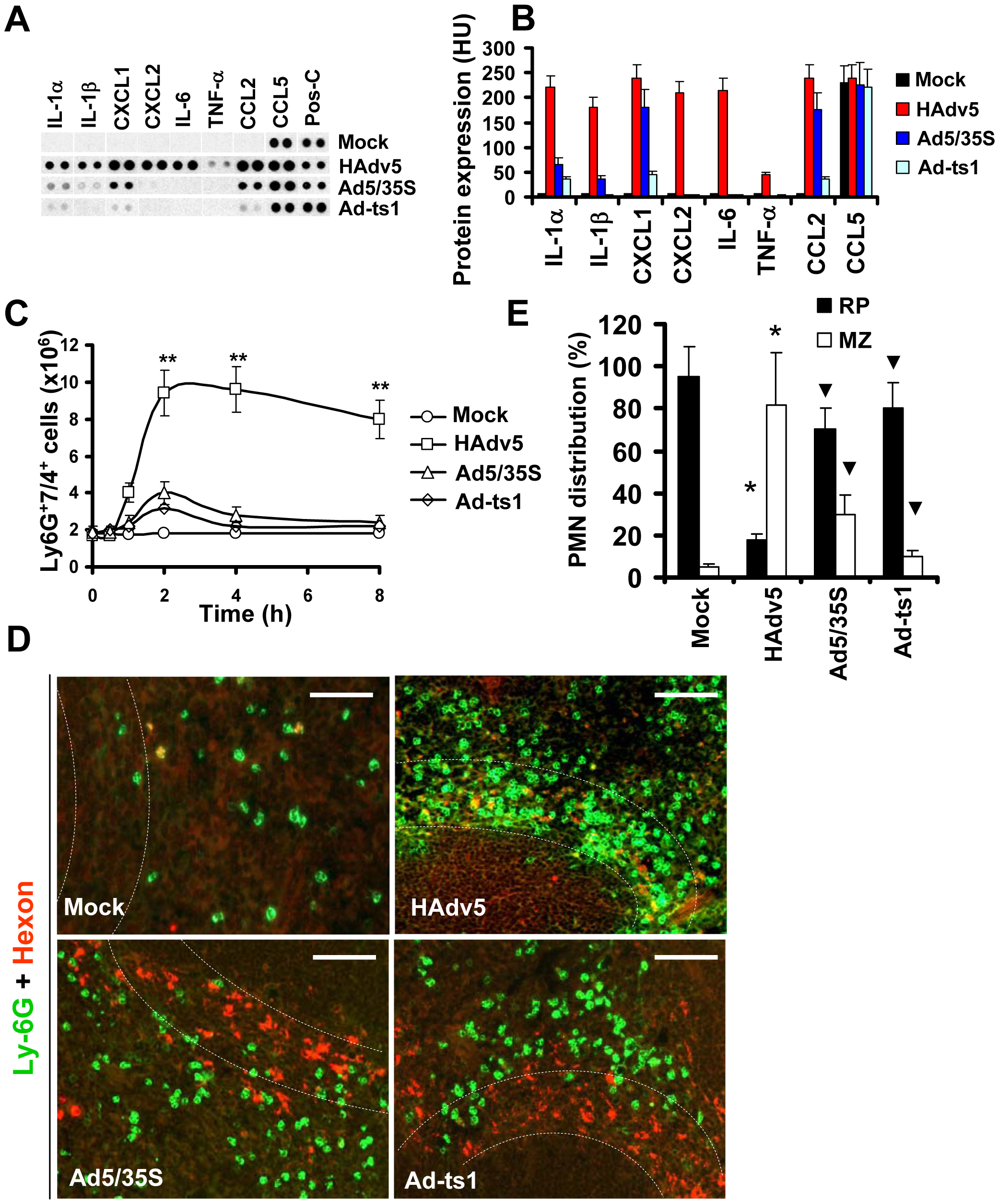 Localization of Ly-6G<sup>+</sup> cells to the splenic MZ occurs in response to pro-inflammatory stimuli.