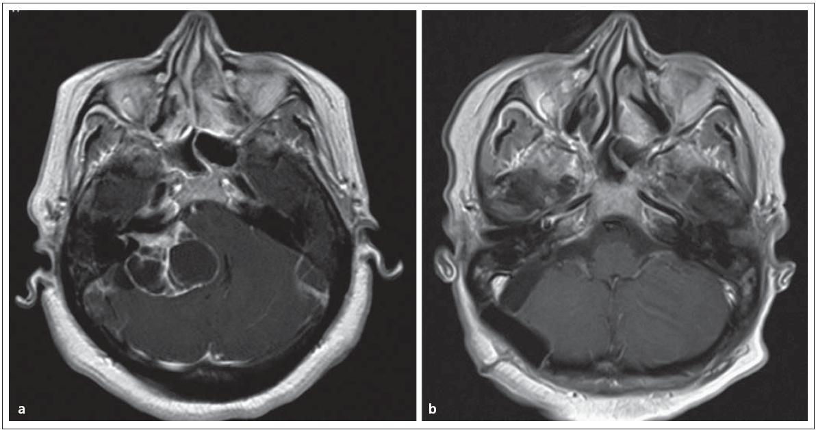Cystický vestibulární schwannom st. IV. Obr. 6a) MR před operací. Obr. 6b) Úplné odstranění nádoru se zachováním lícního nervu.