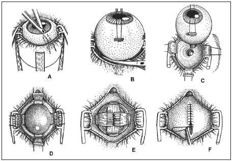 Schéma fáz postupu pri aplikácii pohyblivého orbitálneho implantátu po enukleácii očnej gule. Vysvetlenie v texte