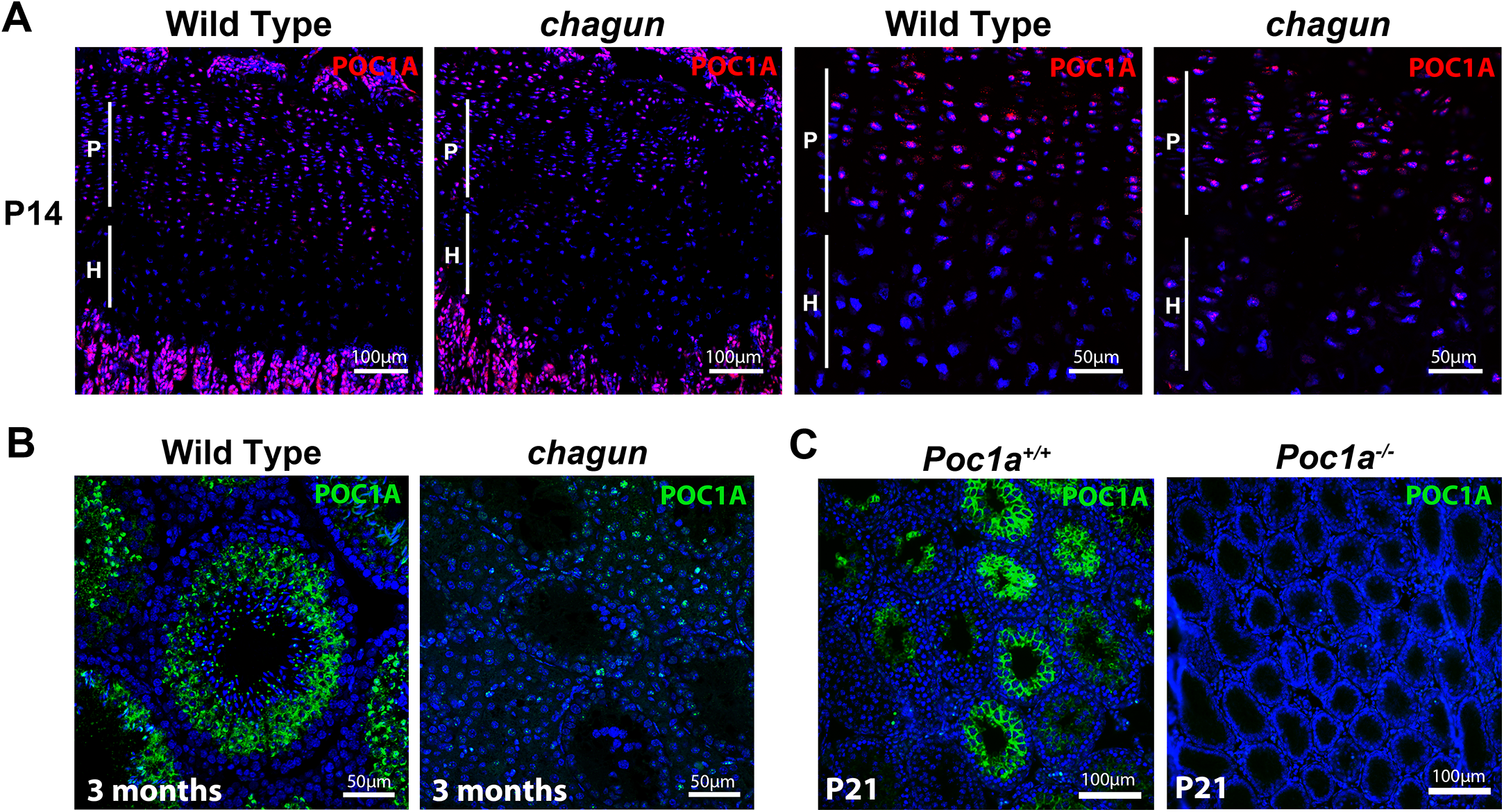 POC1A is expressed in the growth plate and seminiferous tubules.