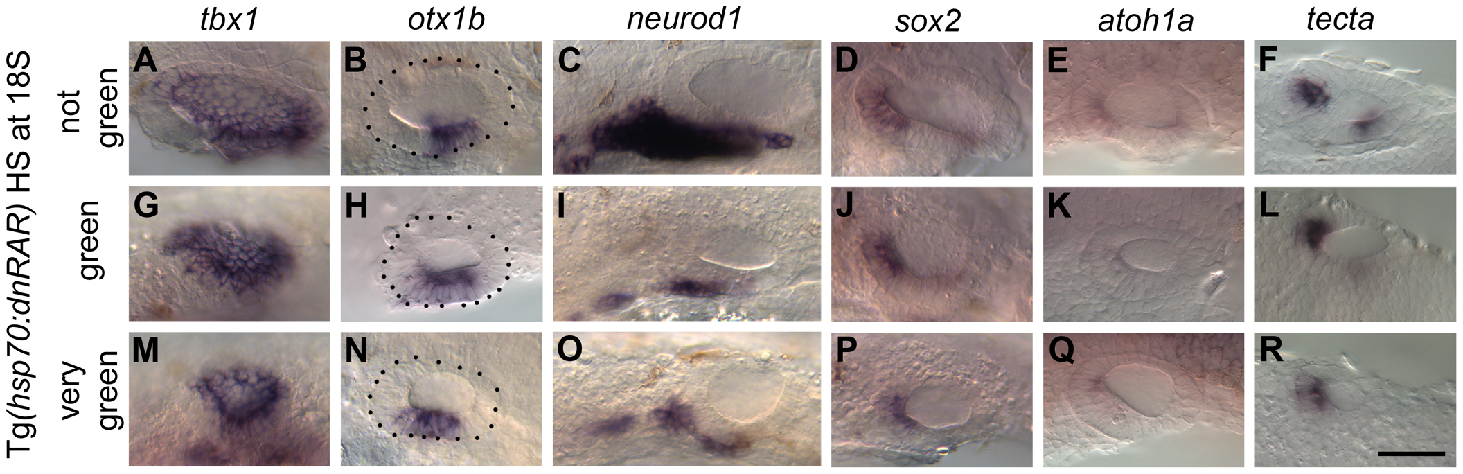 Heatshock of <i>Tg(hsp70:dnRAR)</i> embryos leads to an expansion of otic <i>otx1b</i> and a loss of <i>neurod1</i> expression.