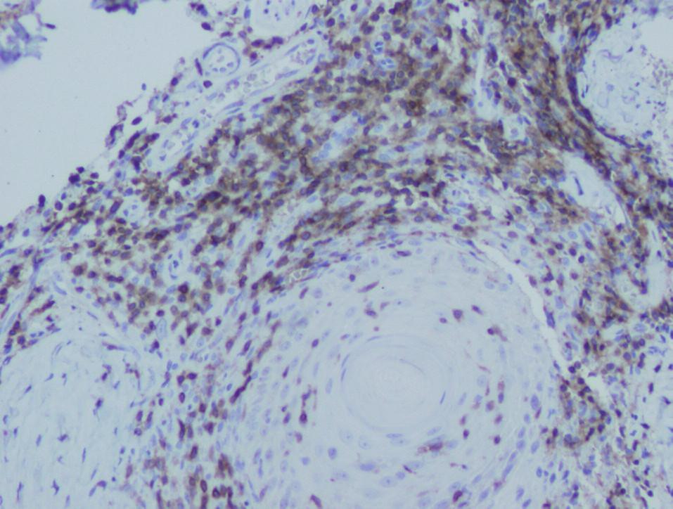 V infiltrátu převažující CD3+ lymfocyty, x200
