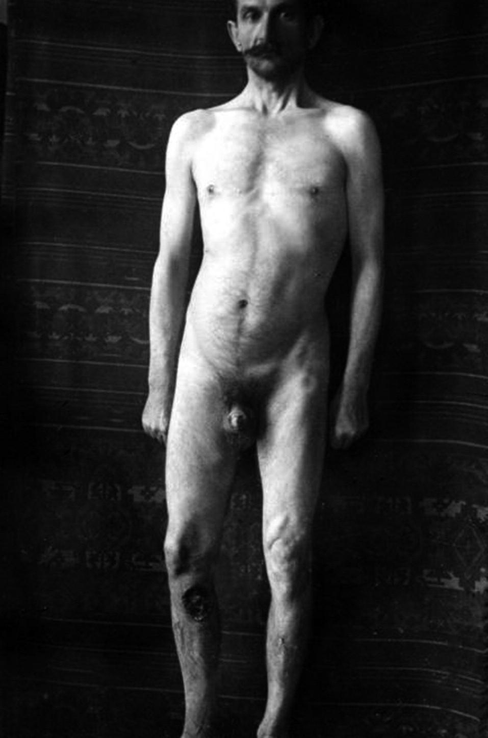 Rozpadlé syfilitické guma – stylový snímek pořízený A. Trýbem.